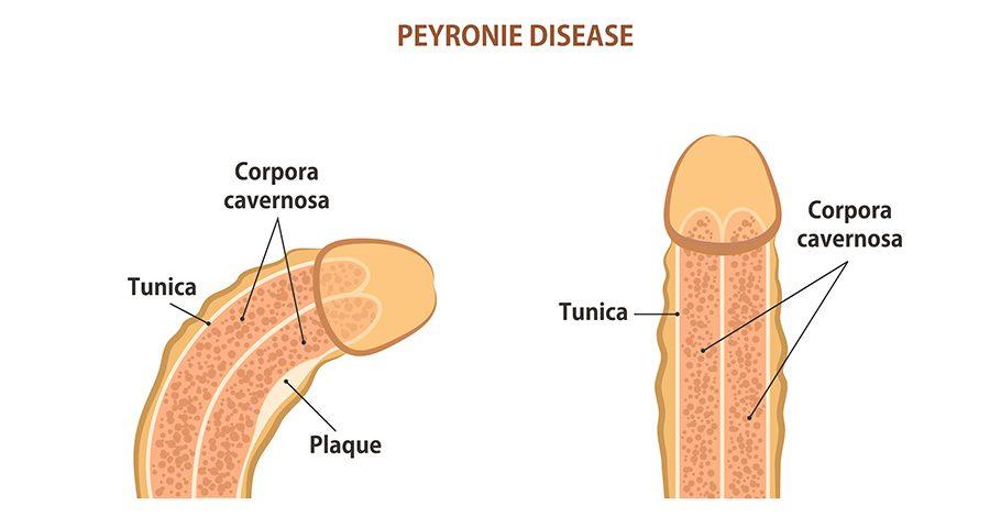 Peyronie Plağı Tedavisi
